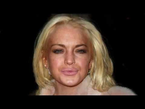 Lindsay Lohan's Ridiculous Facial Transformation