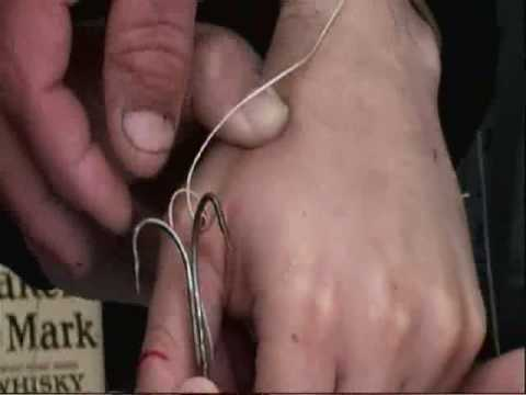 Removing A Treble Hook From A Man's Hand