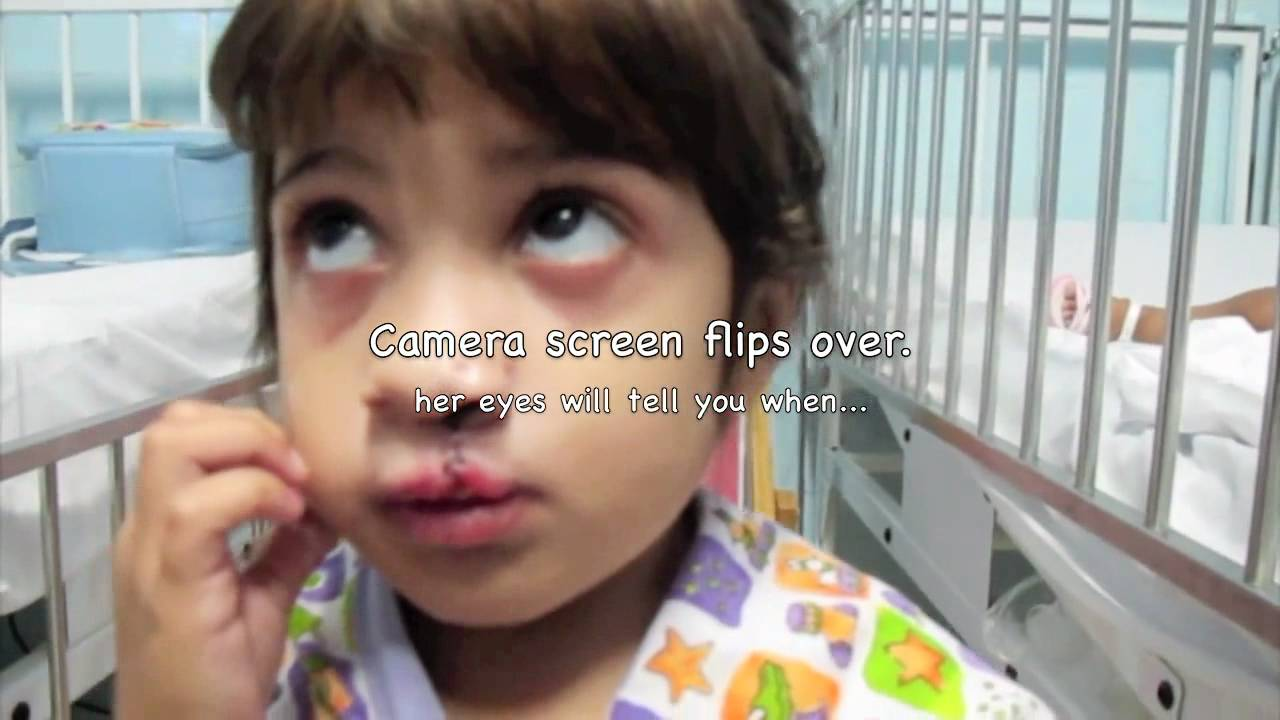 Little Girl Sees Herself After Cleft Surgery